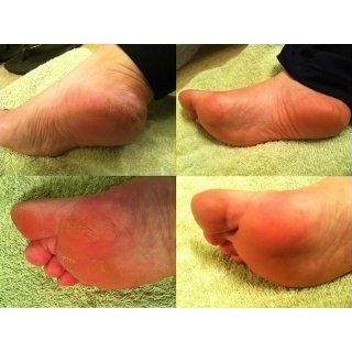 Sof Feet Callus Reducer : Callus Shavers : Beauty